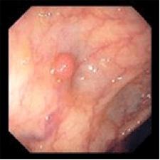 Polipo infiammatorio
