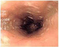 Polipi esofago