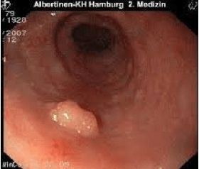 Papilloma in esofago