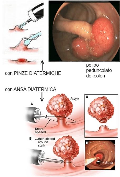 Polipectomia con pinza e con ansa